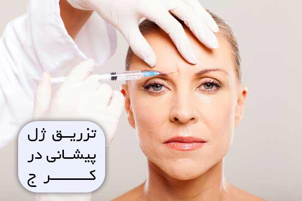 تزریق ژل پیشانی در کرج