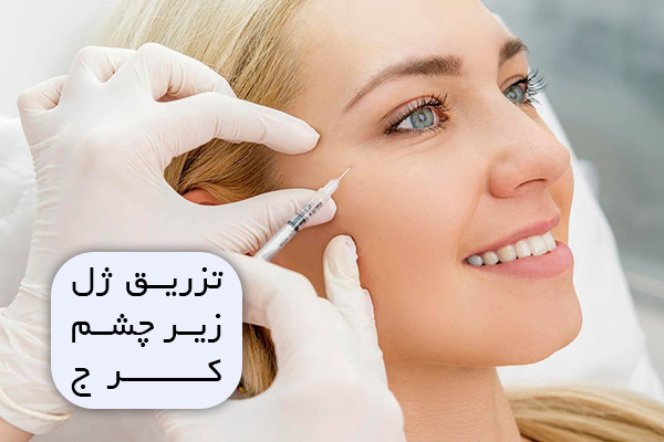 تزریق ژل زیر چشم کرج
