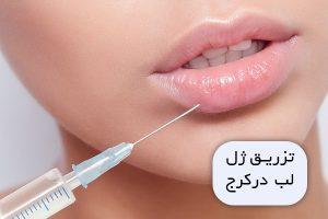 تزریق ژل لب در کرج