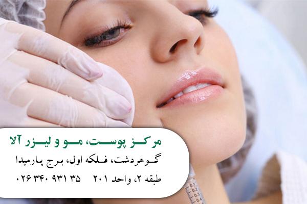 تزریق ژل در کرج