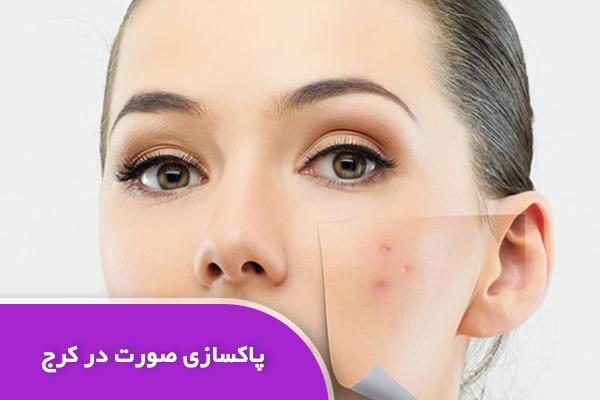 پاکسازی پوست صورت در کرج