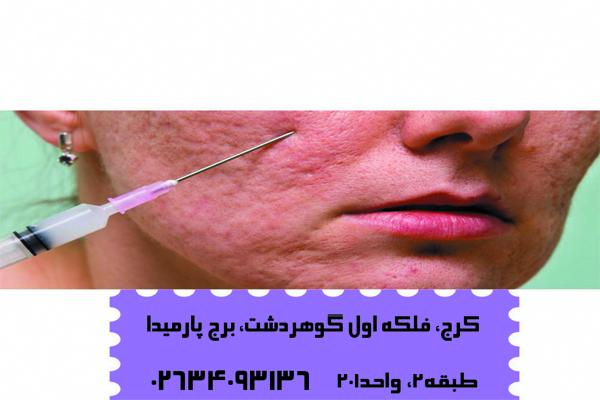 سابسیژن پوست چیست