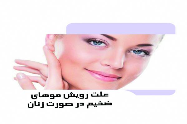 علت رویش موهای ضخیم در صورت زنان