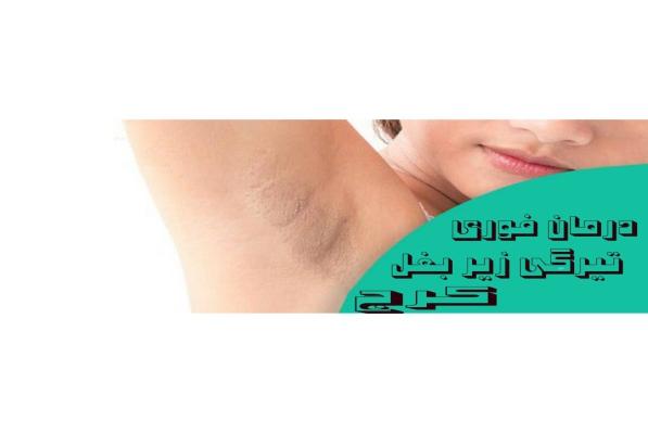درمان فوری تیرگی زیر بغل کرج