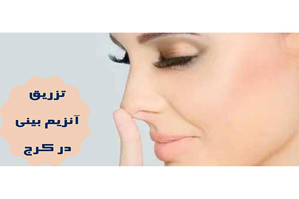 تزریق آنزیم بینی در کرج