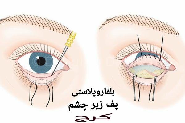 بلفاروپلاستی پف زیر چشم کرج