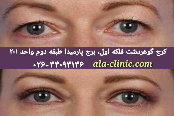 بلفاروپلاستی چشم ژاپنی کرج