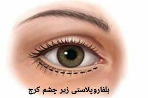 بلفاروپلاستی زیر چشم کرج