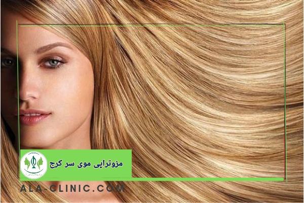 مزوتراپی موی سر کرج
