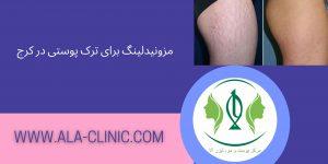 مزونیدلینگ برای ترک پوستی در کرج